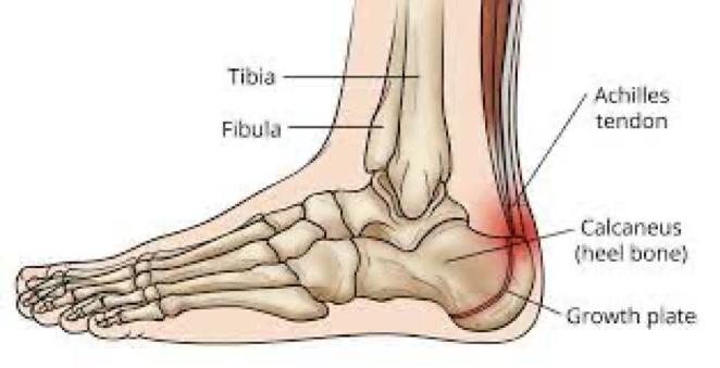 Sever's disease anatomy